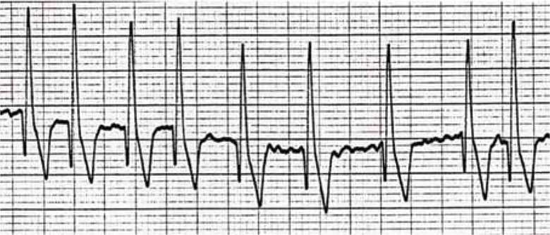 A patient care report of a Doberman in heart failure